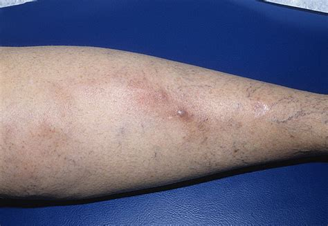 Phlebitis Foot Pictures – 12 Photos & Images / illnessee