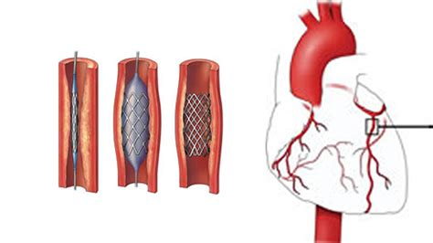 What Is Angiogram - Medicover Hospitals
